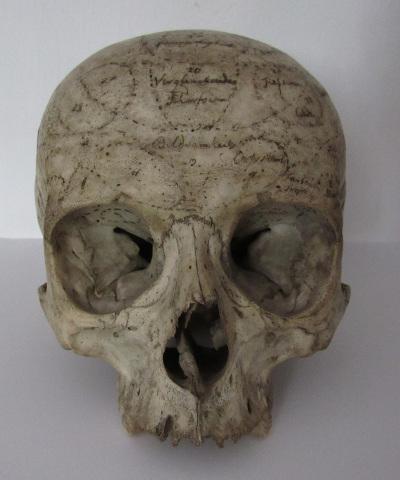 Lavater féle koponya